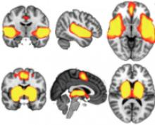 Using fMRI to predict long-term concussion complications | Center